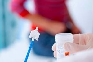 ВПЧ тест: различные способы выявления заражения у человека