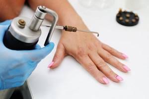 Бородавки на руках: основные причины и эффективные способы лечения