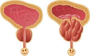 Как правильно проводить лечение аденомы простаты прополисом