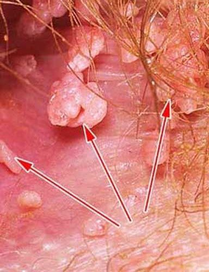 Анальные бородавки: диагностика и лечение новообразований