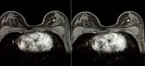 Показания к магнитно-резонансной томографии молочных желез