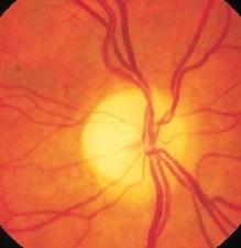 Лечение атрофии зрительного нерва для улучшения кровоснабжения