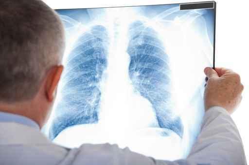 Повышенная потливость и кашель: о чем свидетельствуют симптомы