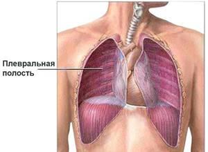 Болят легкие при кашле: причины развития и схема лечения симптома