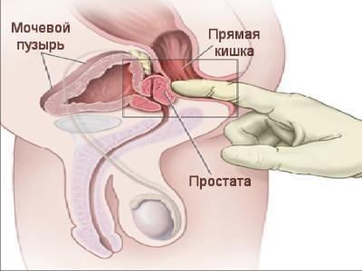Лечение простатита у мужчин с помощью препаратов и массажа