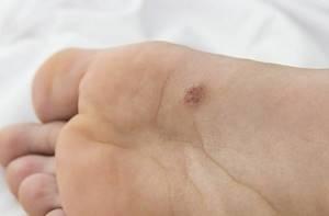 Бородавка подошвенная: симптомы отклонения и способы устранения