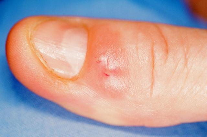 Симптомы вируса простого герпеса и способы лечения патологии