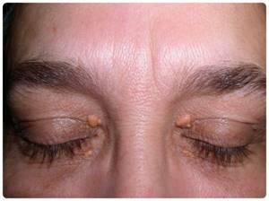 Бородавки на глазах: симптомы и основные способы удаления