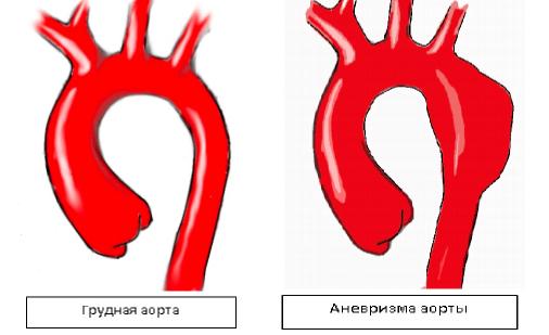 Кровь в слюне без кашля: диагностика патологического состояния