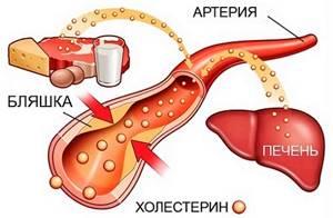 Китайский урологический пластырь от аденомы простаты у мужчин