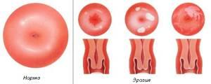 Симптомы лейкоплакии шейки матки и методы лечения патологии
