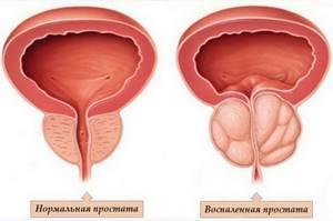 Возьмут ли с простатитом в армию витафон лечение от простатита