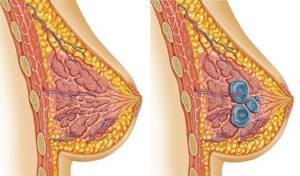Признаки мастопатии молочных желез и их особенности при климаксе