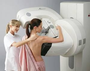 Как выглядит мастопатия: эхопризнаки заболевания молочных желез