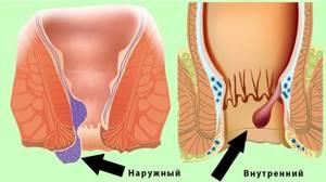 Гнойный простатит: причины воспалительного процесса и его осложнения