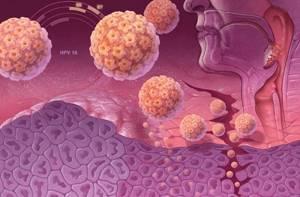 Вирус папилломы человека: чем опасен и кто в зоне риска