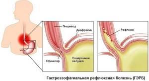 При каких заболеваниях пациент задыхается при кашле и что делать