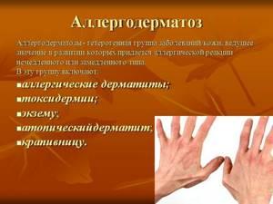 Лечение пищевой аллергии с помощью антигистаминных препаратов