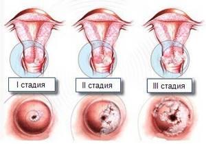 Симптомы дисплазии шейки матки и методы лечения патологии