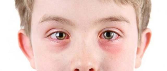 Лечение вирусного конъюнктивита медикаментозными средствами