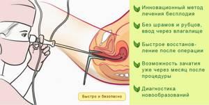 Симптомы миомы матки и методы лечения доброкачественной опухоли