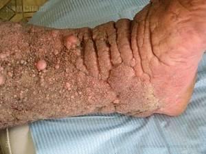 Карциноидный папилломатоз Готтрона: симптоматика и лечение заболевания