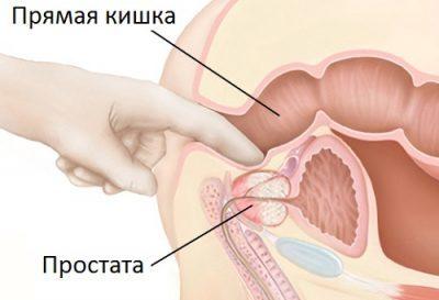 Осложнения при массаже простаты: почему не выделяется секрет