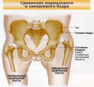 Лечение каких заболеваний входит в компетенцию врача-ортопеда