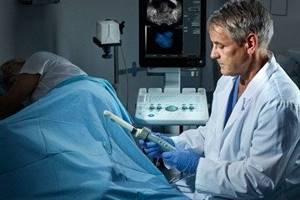 ТРУЗИ предстательной железы: как делают и подготовка к процедуре