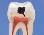 Причины появления и основные симптомы развития кариеса зубов