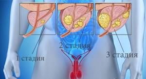 Узлы в предстательной железе: что это и какие типы узлов выделяют