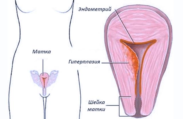 Симптомы и тактика лечения железистой гиперплазии эндометрия