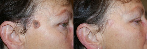 Удаление бородавок лазером или азотом: что лучше выводит наросты
