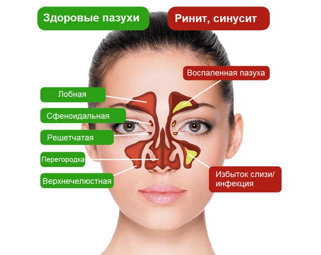 Что показывает магнитно-резонансная томография пазух носа