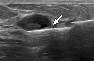 УЗИ молочных желез при мастопатии: как часто можно его делать