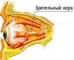 Как проводится диагностика и лечение ретробульбарного неврита