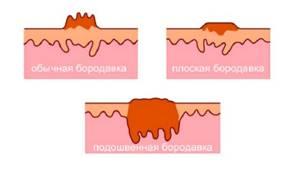 Бородавка под микроскопом: анатомия и структура образования