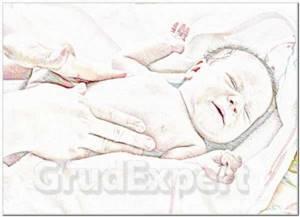 Мастопатия новорожденных: причины появления и особенности течения