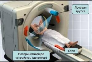 Этапы проведения компьютерной томографии органов малого таза