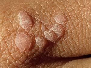 Папилломатоз кожи: клиническая картина и методы лечения патологии
