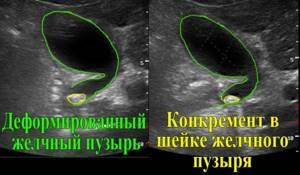 Как проводится ультразвуковое исследование желчного пузыря