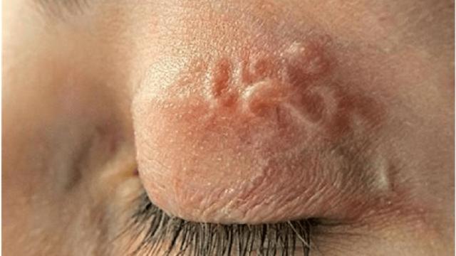 Симптомы дирофиляриоза и основные методы лечения заболевания