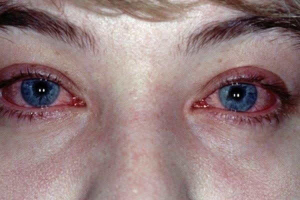 Лечение блефароконъюнктивита демодекозного и аллергического типа