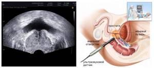 Подготовка к УЗИ простаты: мероприятия перед диагностикой