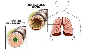 Сироп от кашля Гелисал: инструкция и подробное описание препарата