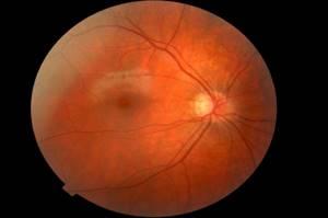 Лечение ангиопатии сетчатки глаз и профилактика осложнений