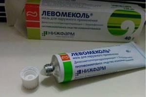 Особенности протекания вульвита: симптомы и лечение заболевания