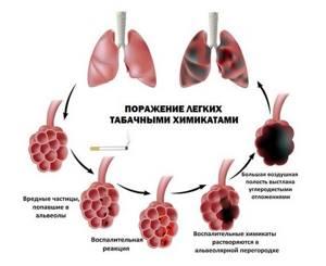 Воспаление легких без температуры без кашля и насморка