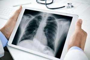 Боль в боку при кашле: диагностика и тактика лечения симптома