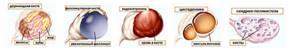 Симптомы кисты в яичнике и основные методы лечения патологии